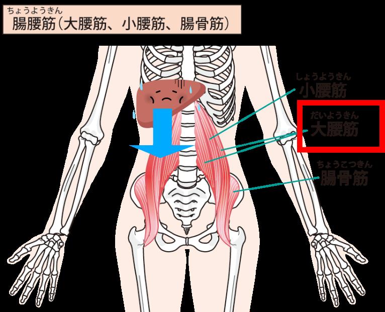 股関節痛 原因 大腰筋